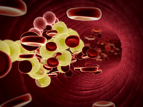 LDL cholesterol variability associated with declining cognitive performance in older adults: Study