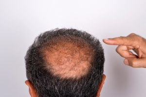 Men look younger with a hair transplant: Study