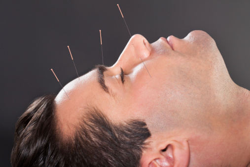 Mild cognitive impairment slowed with acupuncture: Study