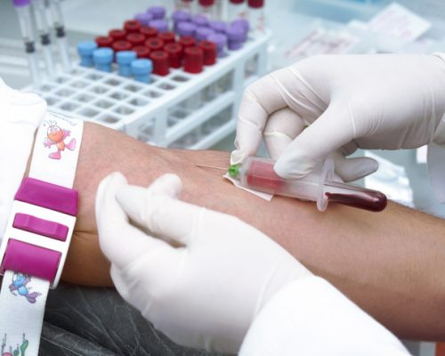 Stroke risk may be predicted with a blood test