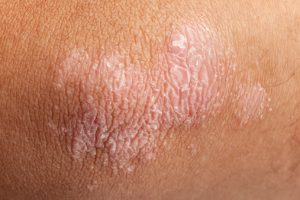 Treating psoriasis reduces risk of other ailments: Study