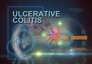 ulcerative colitis complications