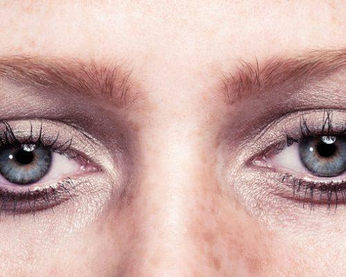 What causes watery eyes (epiphora)?