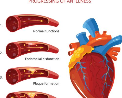 atherosclerosis prevention