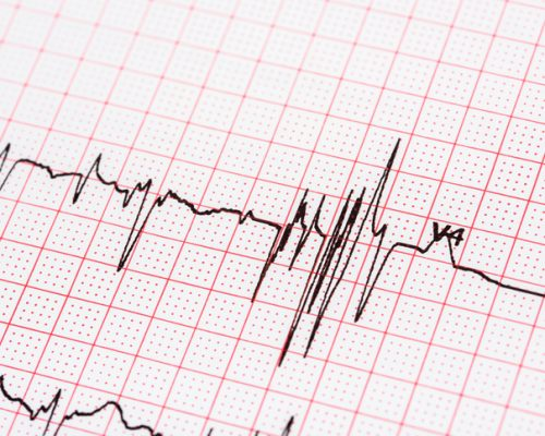 Atrial fibrillation in older adults may affect strength, balance, gait speed, and coordination: Study