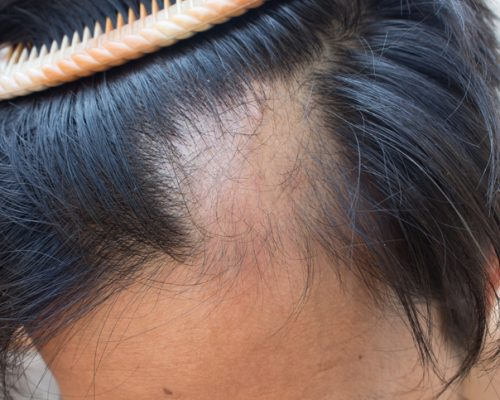 Certain types of hair loss may be treated with arthritis drug