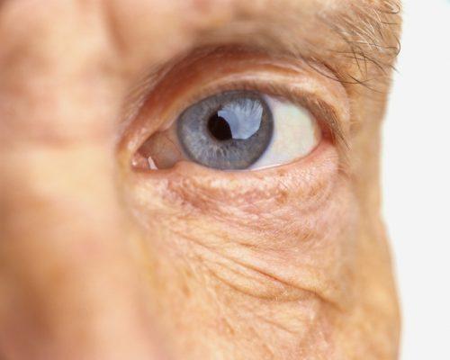 Eye exercises for presbyopia (farsightedness)