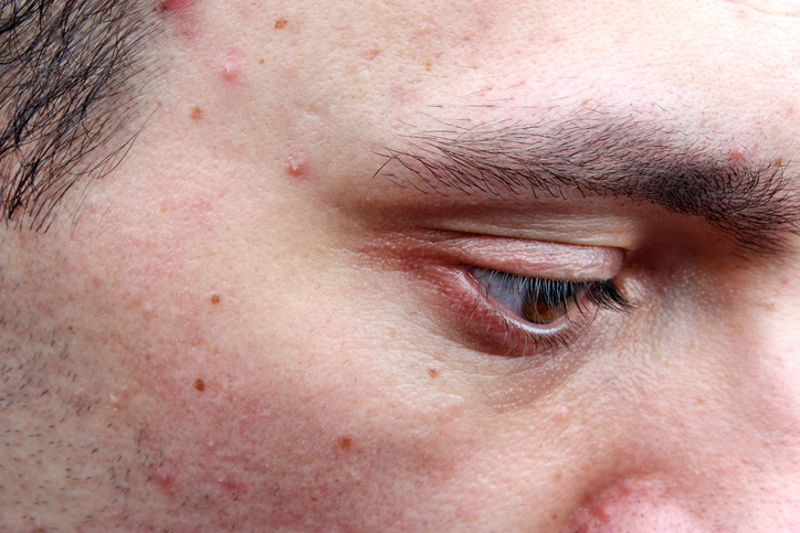History of acne may signal slower skin aging
