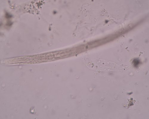 Inflammatory bowel disease treatment with parasitic worms shows promise: Study
