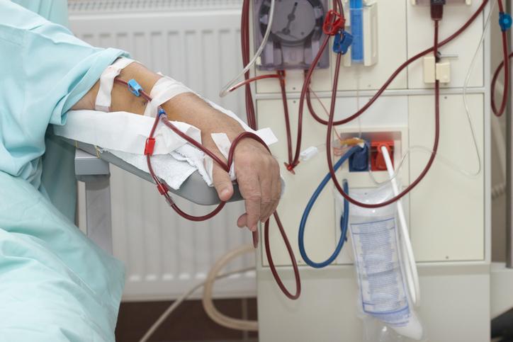 dialysis kidney patients
