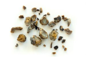 Kidney stone risk higher in patients with ankylosing spondylitis: Study