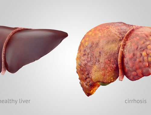 Liver cirrhosis: Causes, symptoms, treatment, and home remedies