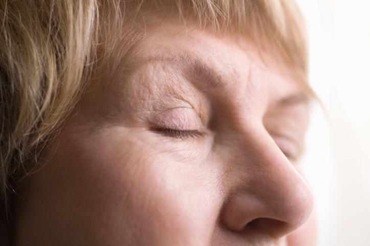 Meibomian gland dysfunction causing dry eye syndrome