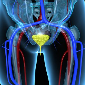 neurogenic bladder