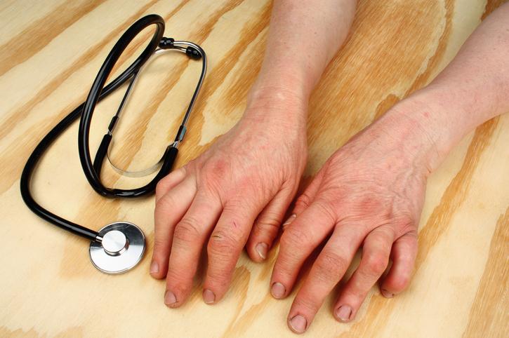 New biologic drug for rheumatoid arthritis approved by the FDA