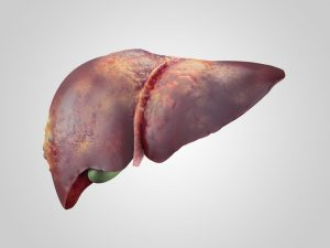 non-alcoholic steatohepatitis may progress to liver fibrosis and cirrhosis