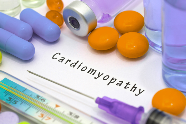 restrictive cardiomyopathy may lead to heart failure after diagnosis