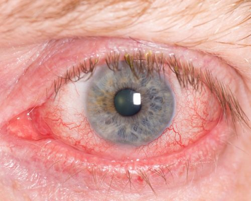scleritis inflammation of the white of the eye