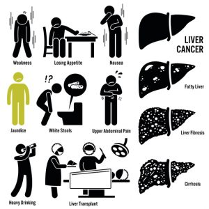 Liver Cancer Symptoms Transplant Illustrations