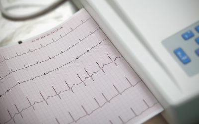 Cardiography. Method in medicine.