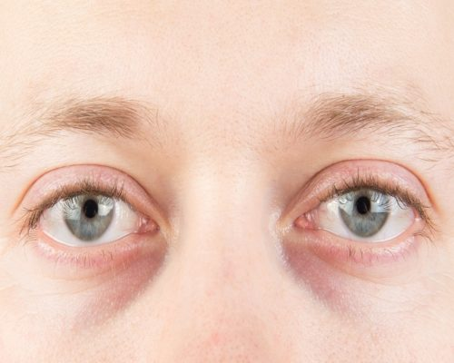 Corneal ulcer: Diagnosis, treatment, and prevention