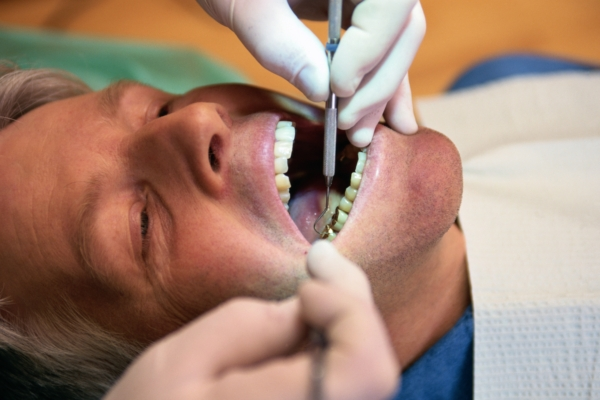 Dental cleaning doesn't just improve oral health, boosts lung health, too