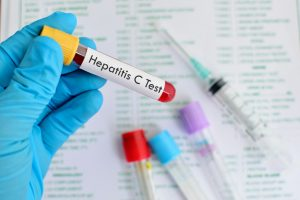 hepatitis c testing recommended for baby boomers