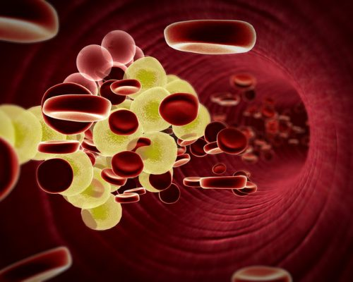 High cholesterol may lead to osteoarthritis by causing cartilage cells to die: Study