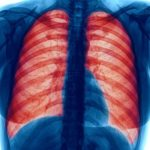 in-copd-patients-pneumonia-survival
