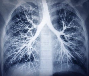 lupus-affects-the-lungs