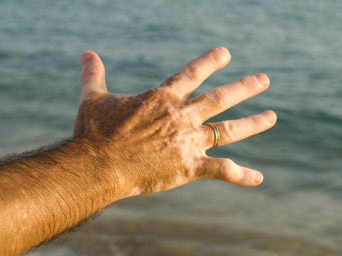 Additional genes linked to vitiligo uncovered