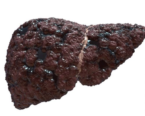 Non-alcoholic fatty liver disease and diabetes together may increase liver fibrosis risk: Study