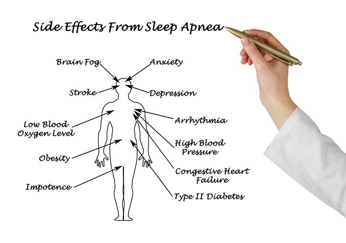 Stroke risk and recovery linked to sleep disorders like insomnia, sleep apnea: Study