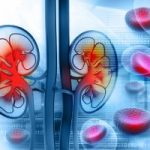 Kidney-acid-reflux