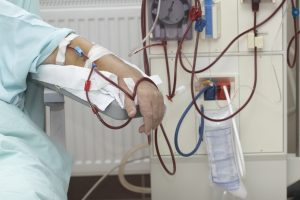 acute kidney injury