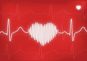 EKG Heart Attack