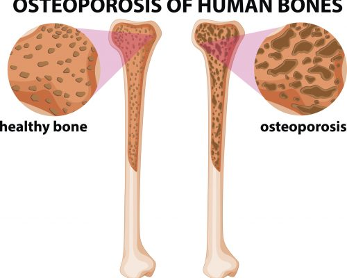 bone loss and diabetes