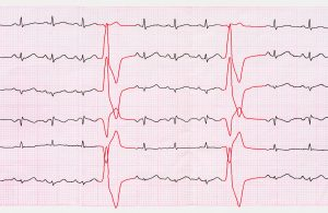 heart arrhythmia