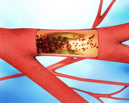 peripheral artery disease risk increases with hypertension