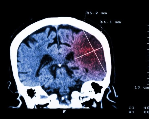 Ischemic stroke risk linked to traumatic brain injury (TBI), independent of other factors