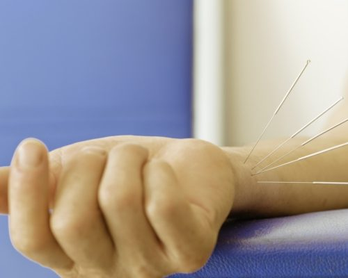 Lower hypertension by activating opioids with regular electroacupuncture treatment