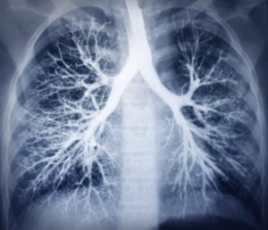 lupus-affects-lungs