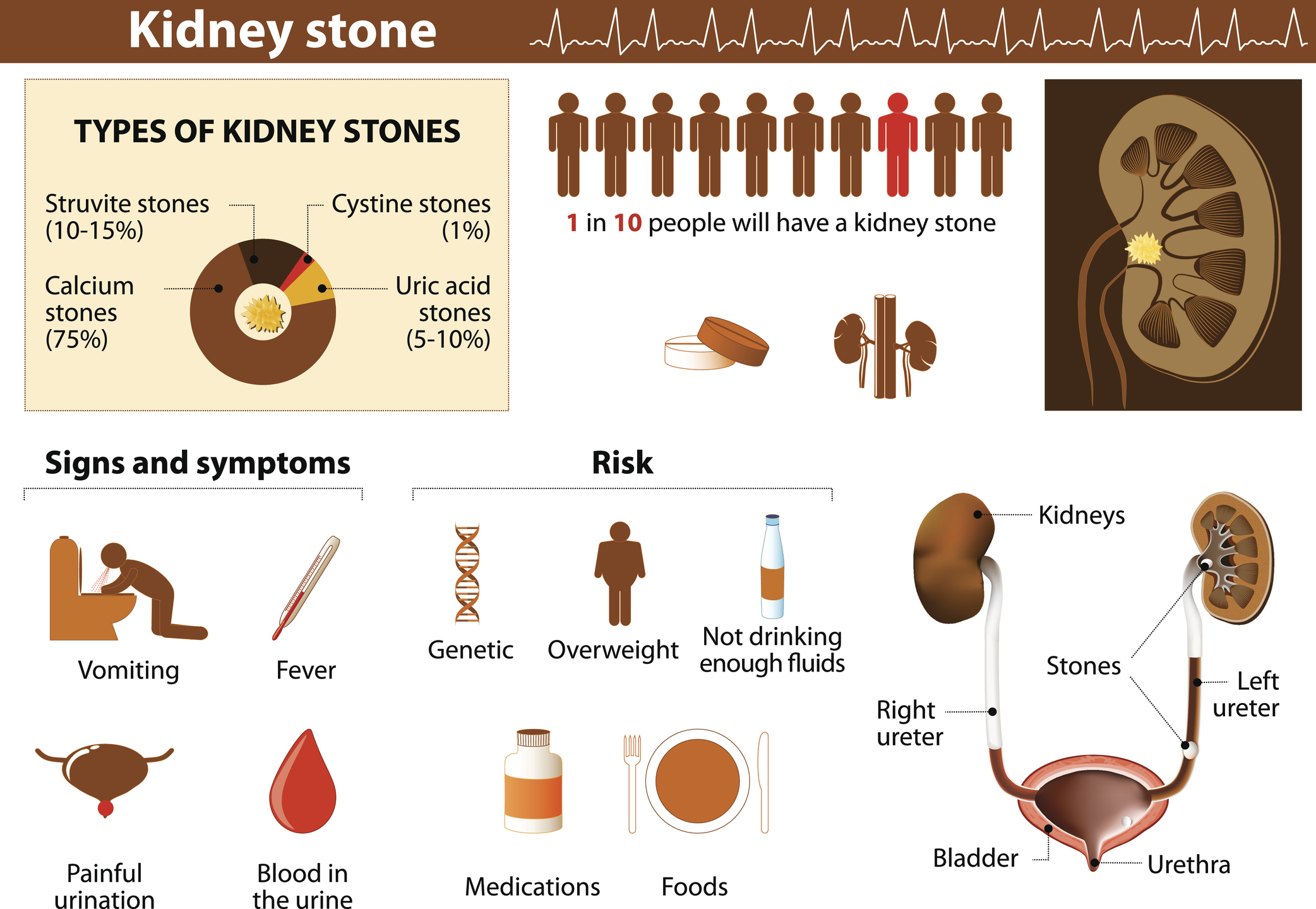 prostate stones natural treatment)
