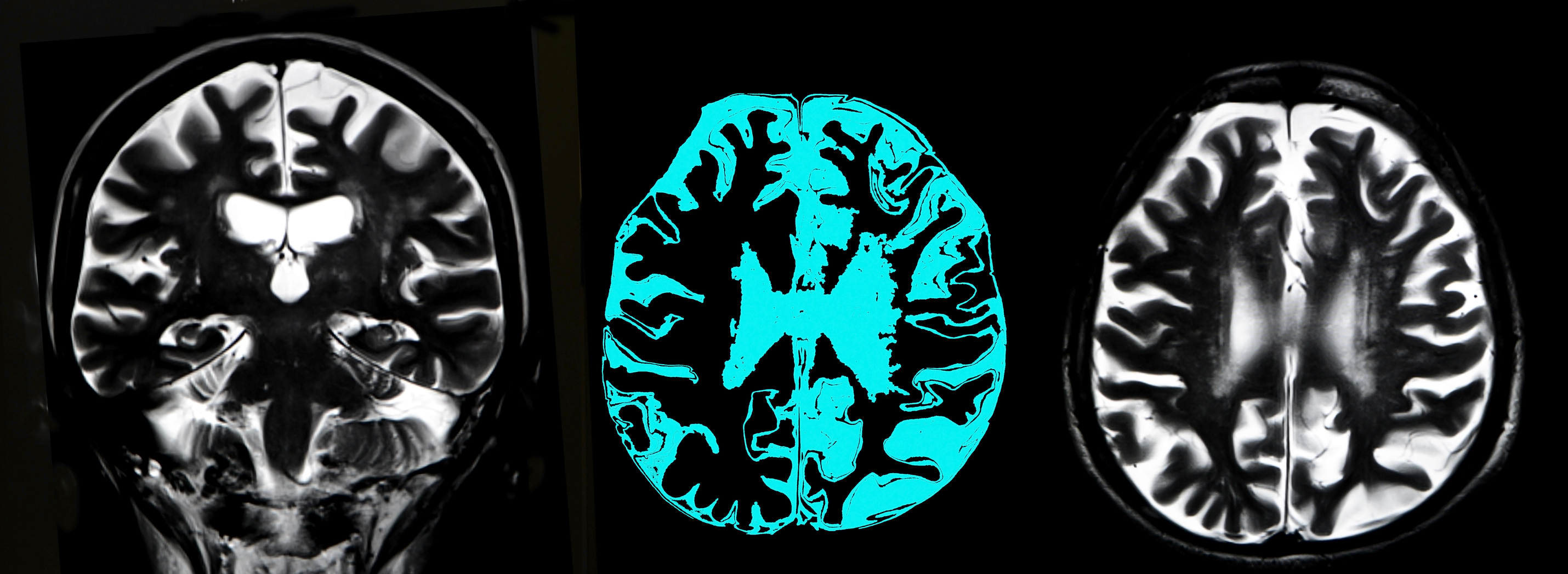 brain atrophy resembling early stage alzheimer's linked to cognitive impairment in type 2 diabetes