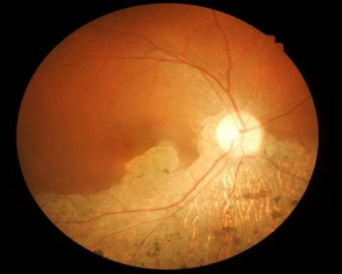 Age-related macular degeneration and macular telangiectasia caused by dysfunctional energy metabolism: Study
