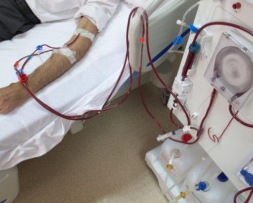 End stage renal disease (ESRD) or stage 5 kidney disease