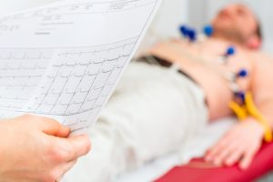 Stroke risk higher in patients with permanent arrhythmia than with short episodes of arrhythmia