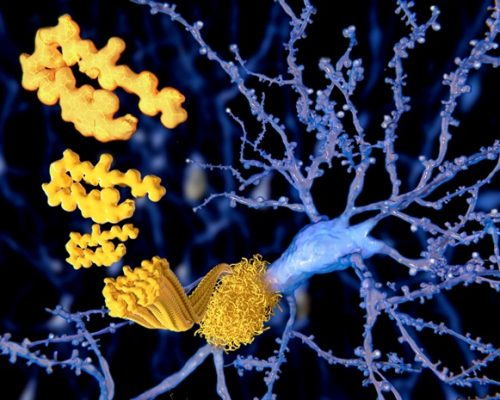 Alzheimer's disease treatment and prevention opportunity recently discovered: Study