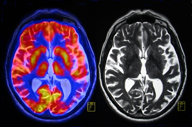 Alzheimer's and normal brains compared, specific brain region identified for dementia prevention