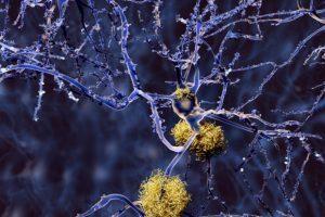 Amyloids triggering Alzheimer's disease can also raise heart failure risk